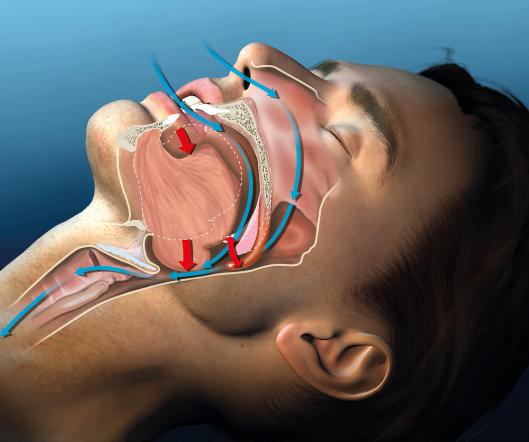 Dental Oral Appliance for sleep apnea
