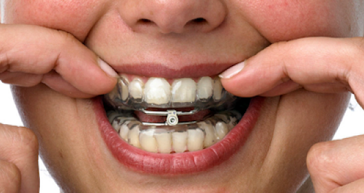Dental Custom Oral Appliance