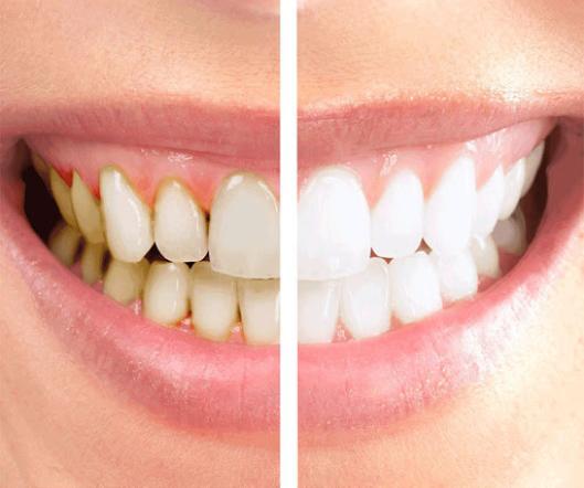 Dental Fullmouth Reconstruction
