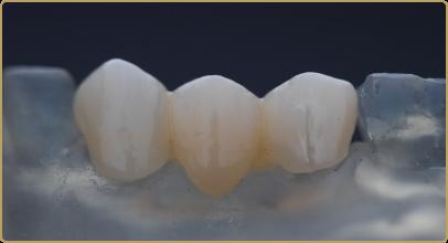 Dental Crowns
