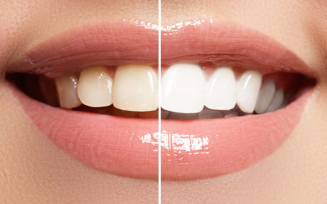 What Does the Teeth Whitening Process Look Like?
