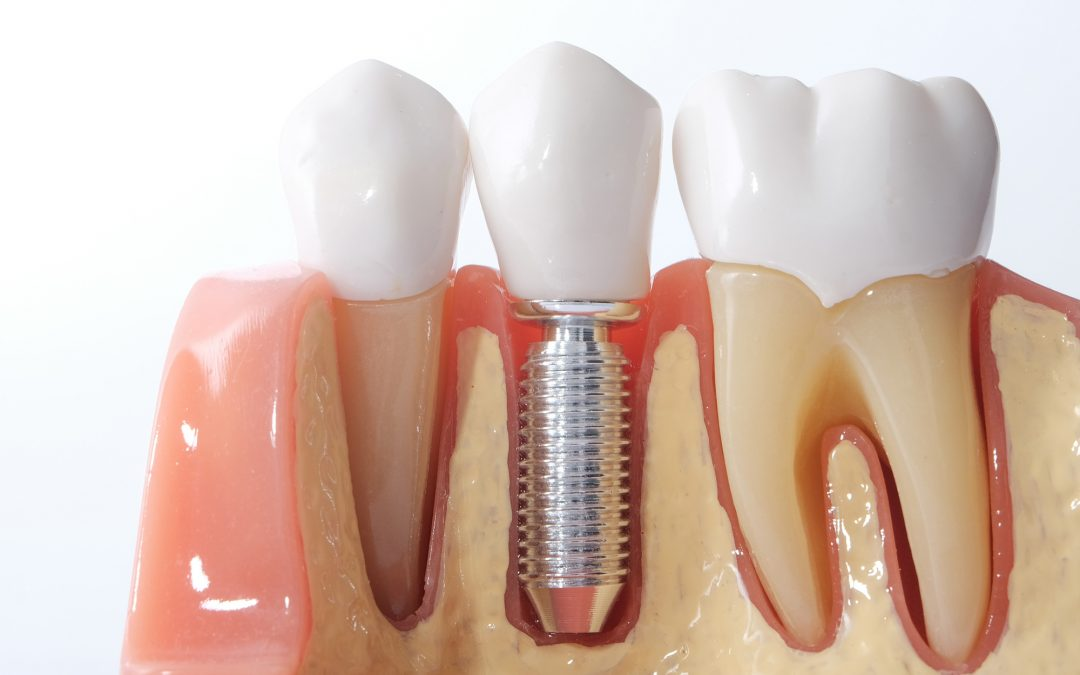 7 Signs You May Need Dental Implants