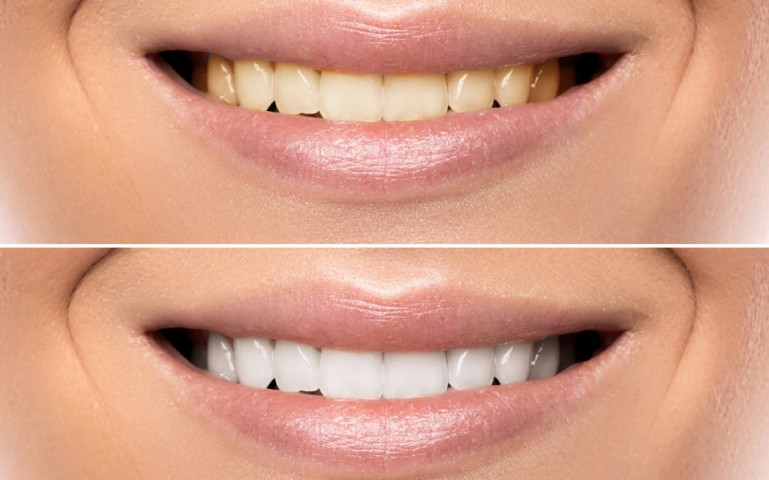 A Quick Guide to the Zoom Teeth Whitening Procedure
